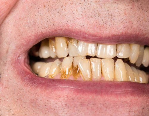 teeth - discoloration